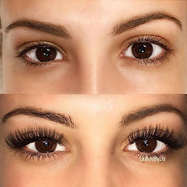 Eyes with treatment