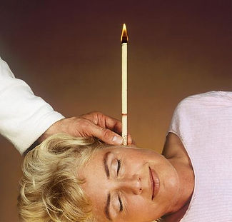 Ear Candle Treatment