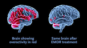 Frequencies of Yah & Attitude: A look at EMDR Therapy