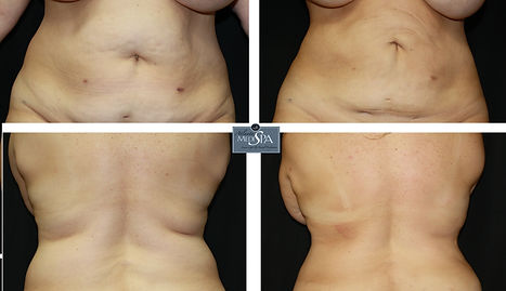 liposuction results front and back, Dermatology, Botox, Lip enhancement, juvederm, Coolsculpting, cosmetic surgery, microdermabrasion, laser hair removal, smartlipo, acne, laser skin resurfacing, facelift, exilis skin tightening, volumia, dysport