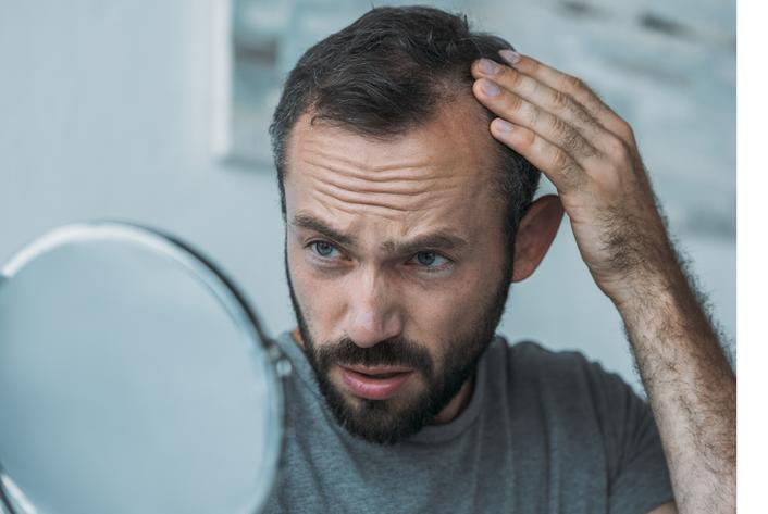 Man loosing hair- Physicians Aesthetics