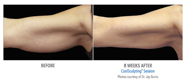 CoolSculpting Arm Fat