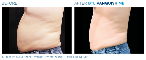 BTL_Vanquish_ME_PIC_Ba-card-male-abdomen