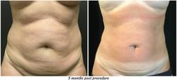 3 months post procedure