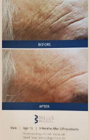Male Patient Wrinkles