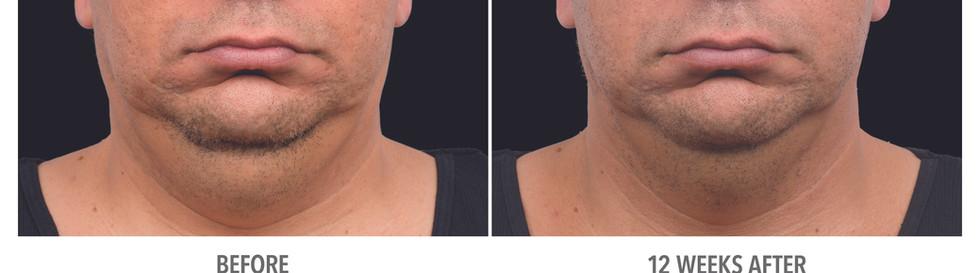 Coolsculpting Chin fat