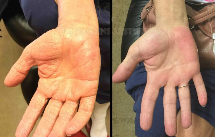 Eczema palms of hand