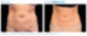 Emsculpt_PIC_Ba-card-female-abdomen-091_