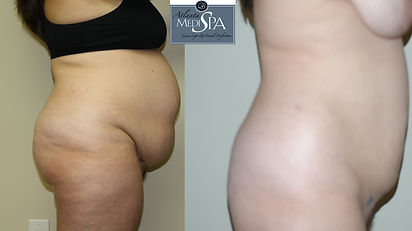 liposuction stomach before, Body sculpting, no abdominoplasty scar, liposuction, fat transfer, atlanta plastic surgery, marietta