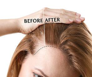 scalp-micropigmentation-for-women-before