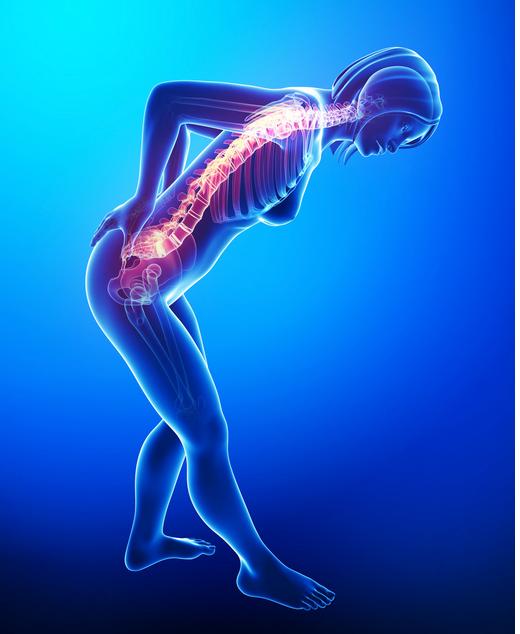 Back Pain in Women