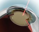 Cataratta Tecnica Laser Femtosecondi