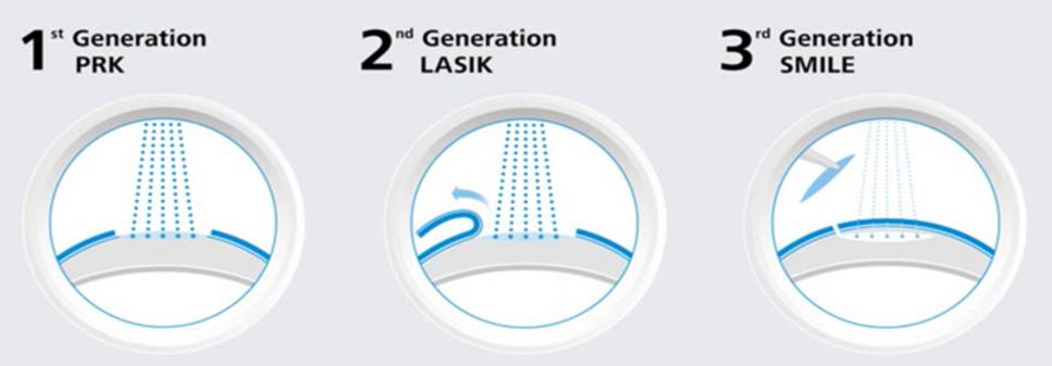 Smile, tecnologia laser di terza generazione