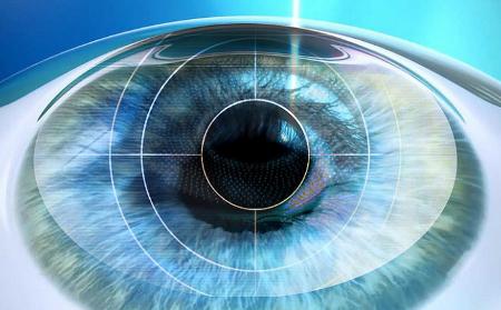 Operazione laser occhi: una questione di sicurezza