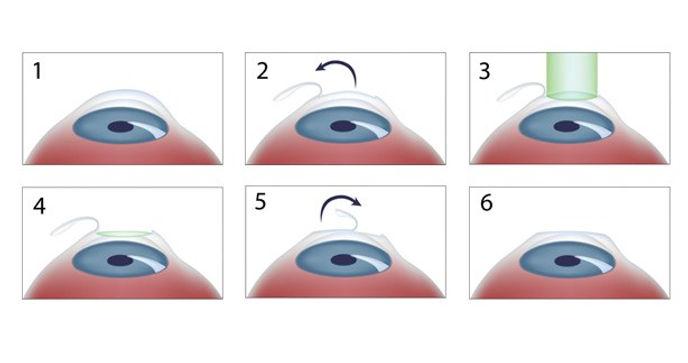 La FEMTOLASIK prevede la creazione di un lembo corneale che viene tagliatocon un particolare Laserdefinito Laser a Femtosecondi