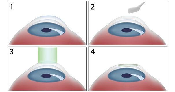 tecnica Chirurgia Refrattiva PRK