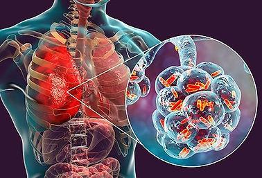 bacterial-pneumonia-1.jpg