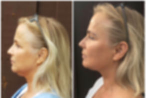 Lift, tighten, and tone your face naturally