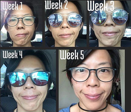 Correct your facial paralysis naturally with Face Yoga