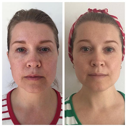 Take ten years off your face with Face Yoga