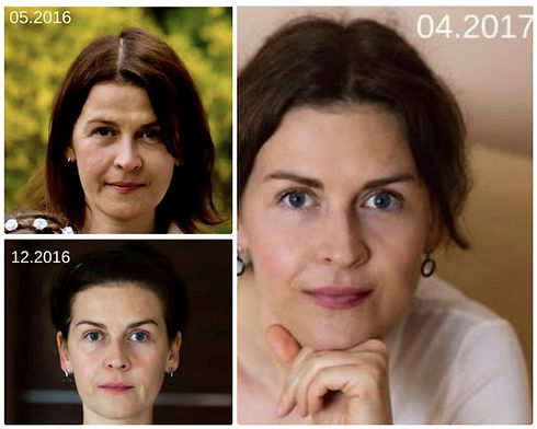 Face Yoga takes ten years off your face