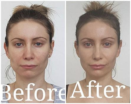 Facial exercises give a natural facelift