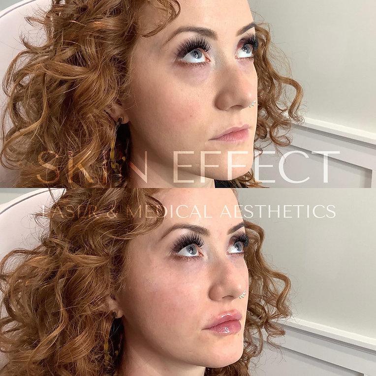The Eye Effect