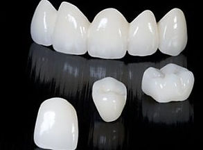 dental-crown-and-bridge-budapest-300x252