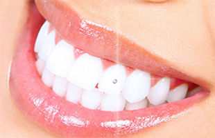 tooth crystal.jpg