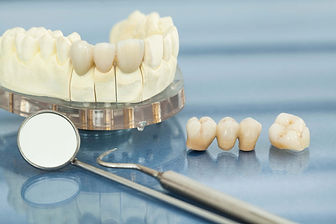 cosmetic-dentistry-crowns-and-bridges-ri