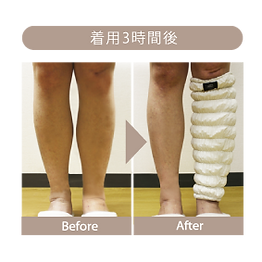 むくみの変化.png