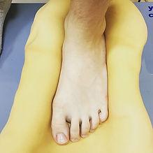поперечное плоскостопие лечение, вальгусное плоскостопие, сколиоз при плоскостопии