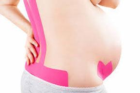 боль в спине во время беременности лечение Оренбург, кинезиотейпирование при беременности.