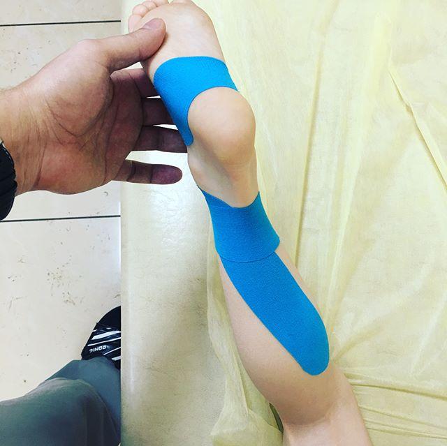 Лечение плосковальгусной деформации