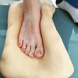 Лечение плоскостопия у детей Оренбур