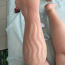 Боль в икроножной мышце лечение, лечение ри судорогах в икрах.