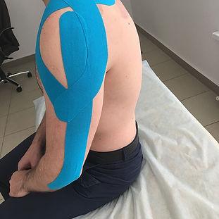 лечение болей в плече Оренбург, боль в плечевом суставе, мануальный терапевт Оренбург