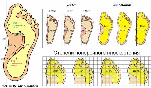 степени плоскостопия, плоскостопие у детей, плоскостопие 2, плоскстоие 3, поперечное плоскостопие.