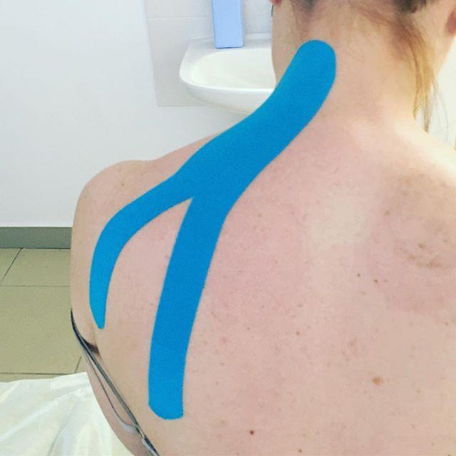 шейный хондроз лечение в Оренбурге