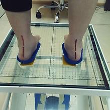 плоско-вальгусные стопы, вальгус стелька, индивидуалбные стельки на заказ
