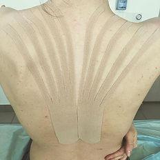 Боли в грудном отделе позвоночника, лечение. кинезиотейпирование в Оренбурге