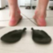 Лечение плоскостопия в Оренбурге, плоско-вальгусные стопы лечение, индивидуальные стельки в Оренбурге, ортопед Оренбурга