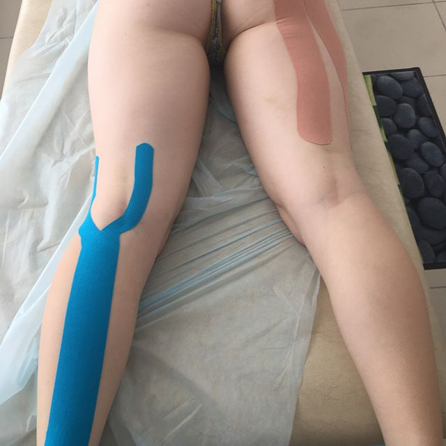 травма мышц лечение Оренбург