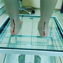 Лечение плоскостопия Оренбург
