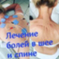 Лечение болей в верхней части спины Оренбург, грудной остеохондроз лечение, кинезиотейпирование при боли в спине.