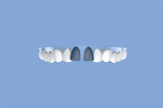Gap teeth and how to treat gap teeth with clear aligners