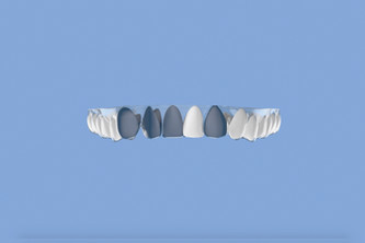 Crooked teeth and how to fix crooked teeth without braces