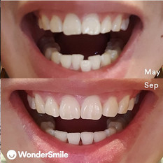 """Great customer service. Happy with the results and highly recommend WonderSmile for people who wants to straighten their teeth!"" - Brandon Ngo @brandon_ngo"