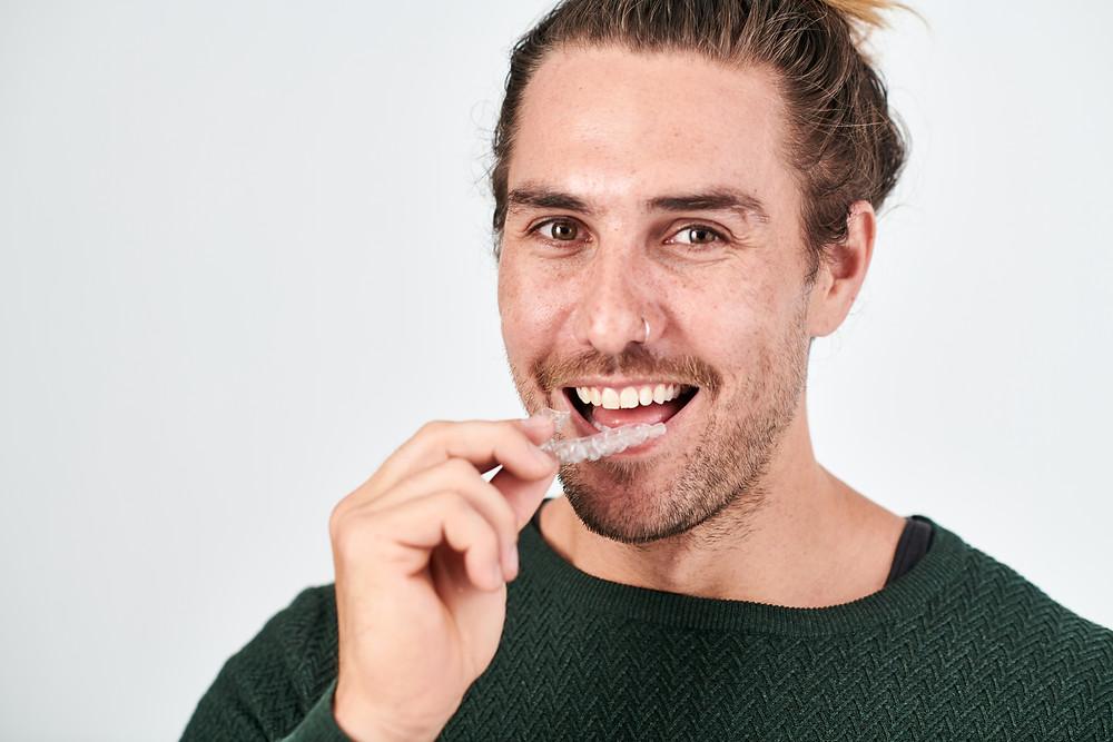 Affordable Teeth Straightening with WonderSmile Clear Aligners