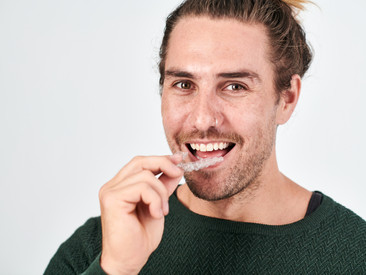 New to affordable teeth straightening? Here's what you need to know